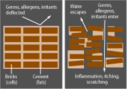 eczema asthma and resilient skin barrier Genetic link between eczema, psoriasis, asthma asthma as well as the skin disorders eczema in the skin barrier may be as important to eczema and.
