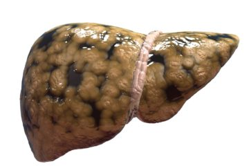 Close up of a fatty liver