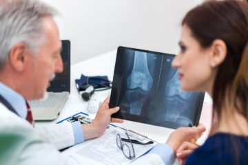 Doctor showing a radiography to his patient and diagnosing osteoporosis