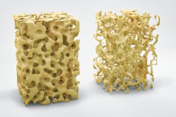Three dimensional bone structure illustration showing normal bone and that with osteoporosis